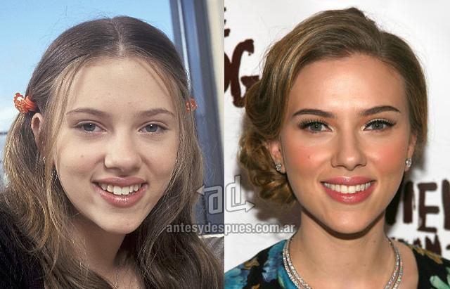 scarlett johansson antes y despues de la cirugia plastica