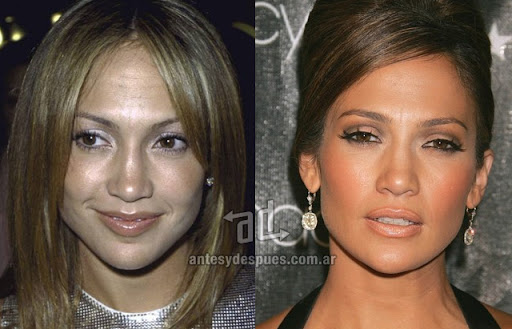 jennifer lopez antes y despues de la cirugia plastica