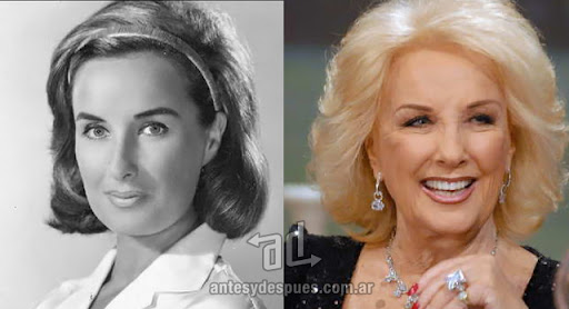 mirtha legrand antes y despues de la cirugia plastica