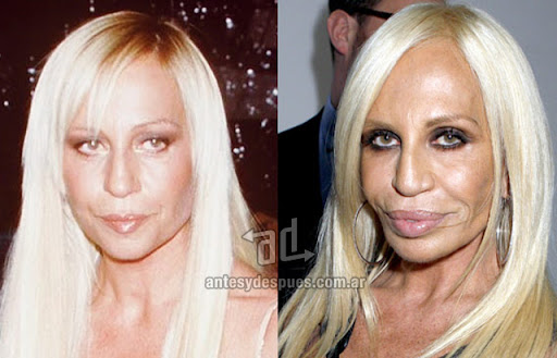 donatella versace antes y despues de la cirugia plastica