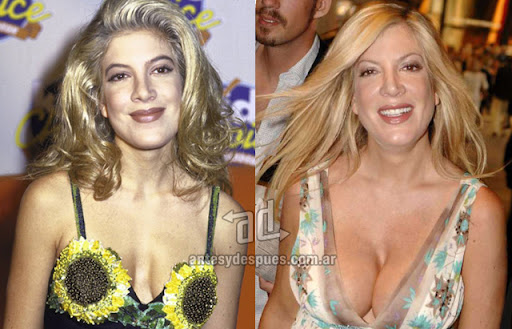 tori spelling before surgery