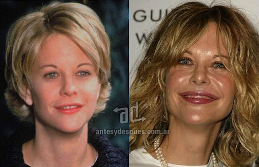 meg ryan antes y despues de la cirugia plastica