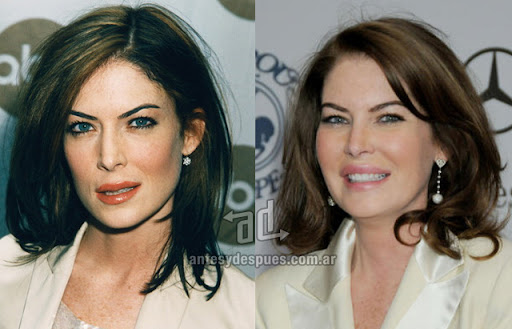 lara flynn boyle antes y despues de la cirugia plastica