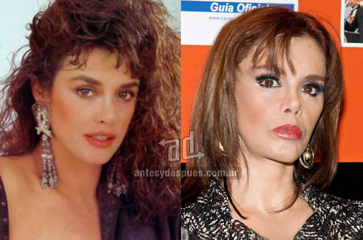 lucia mendez antes y despues de la cirugia plastica