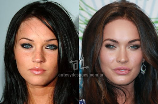 megan fox antes y despues de la cirugia plastica