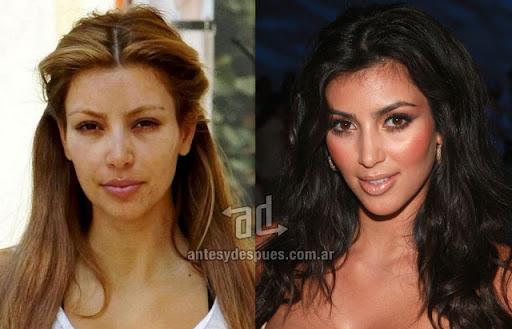 La lista de cirugías de Kim Kardashian (El antes y Después