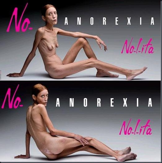 anorexia-campanha