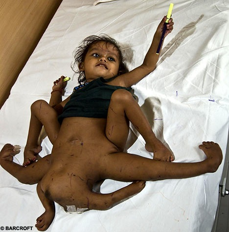 Baby with multiple Limbs