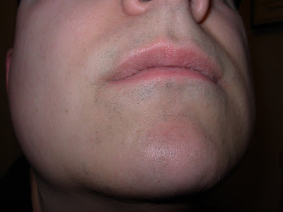 Front, after 30 treatments.