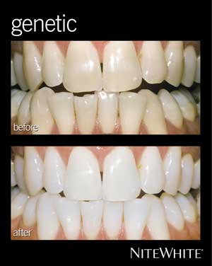 nw-genetic