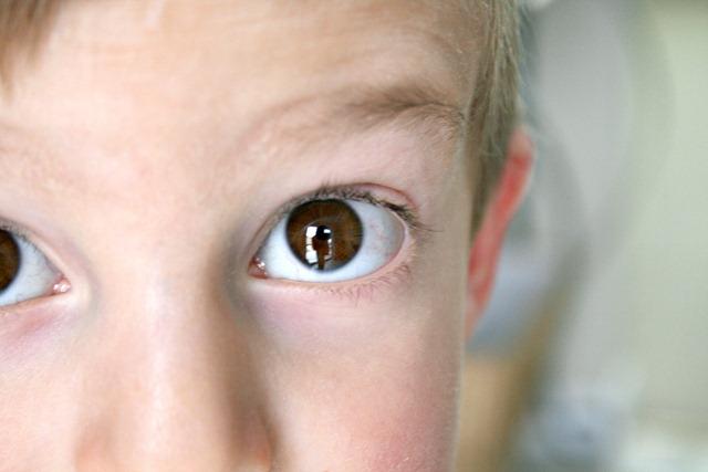 Miles Eyes 1
