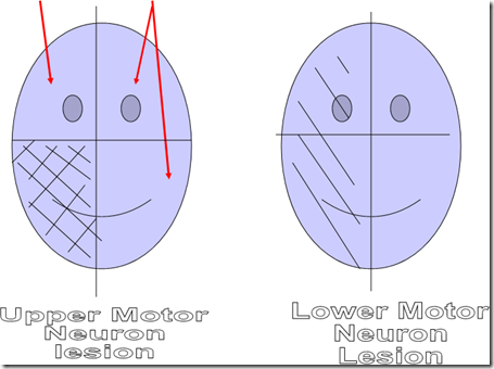 Facial nerve lesion. image. Upper motor neuron lesion. Contralateral lower quadrant weakness
