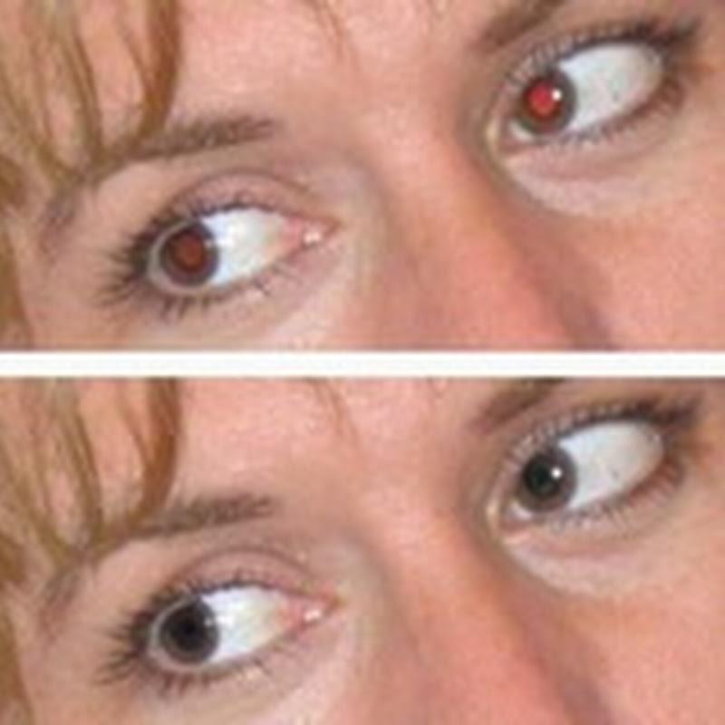 Remover olhos vermelhos