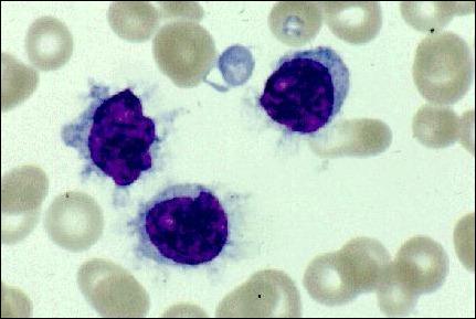 tricoleucemia (células cabeludas)