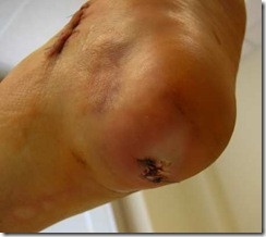 Cadaverous looking heel shot