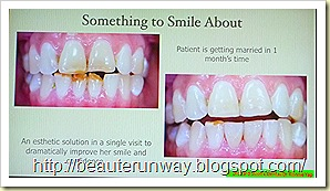 hollywood makeover teeth  orchard scotts dental beaute runway
