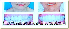 dental aesthetic makeover patient