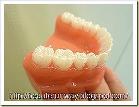 invisalign orchard scotts dental beaute runway 02