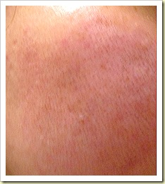 eCO2 Fractional Laser Post treatent Day 5