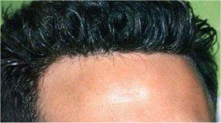 Ben Affleck Balding Celebrities