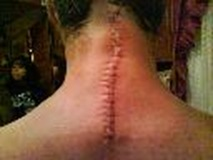 Darrens Scar