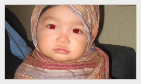 cara menghilangkan red eye dengan photoshop 1