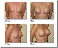 Breast%201
