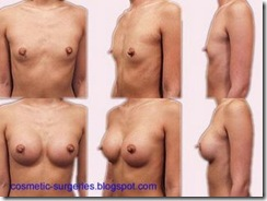 breast augmentation1
