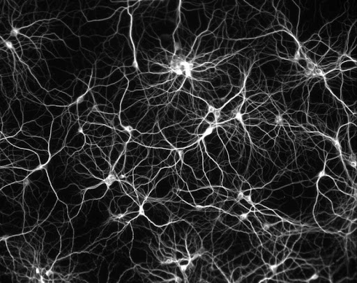 Dissociated culture of hippocampal neurons. © Copyright 2004, Paul De Koninck. All rights reserved. This image used to be called neuron_culture_800px.jpg