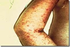 febre maculosa