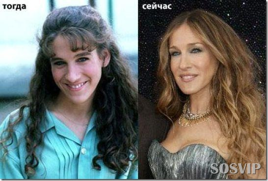 Celebridades antes e depois - Celebs before after.jpg (7)