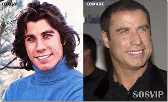 Celebridades antes e depois - Celebs before after.jpg (29)