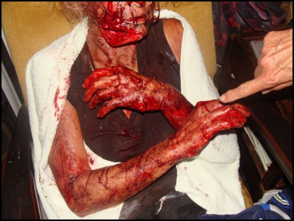 Viljoenskroon farm attack victim panga injuries Jan 25 2010 pic Carien Somers Dippenaar Facebook