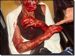 Viljoenskroon farm attack victim panga injuries Jan 25 2010 pic Carien Somers Dippenaar Facebook_thumb[4]