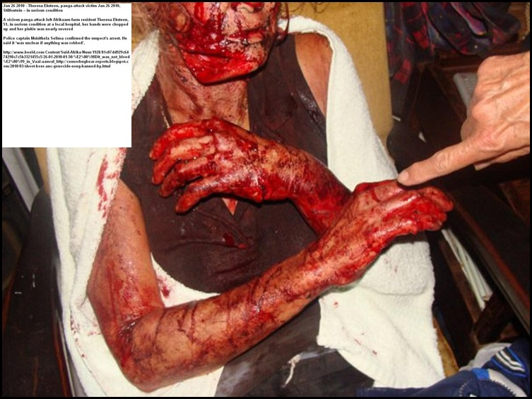 Theresa Eksteen panga attack survivor Jan262010 Stilfontein farm 51 serious condition