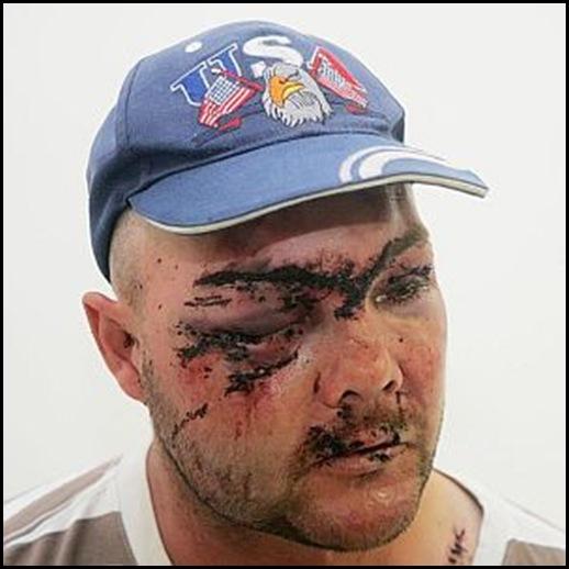 Van Vuuren Marthinus and family beaten up Jagersfontein six man black gang March 23 2010