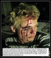 Robindale youth attacked by panga March 242010 Eblockwatch