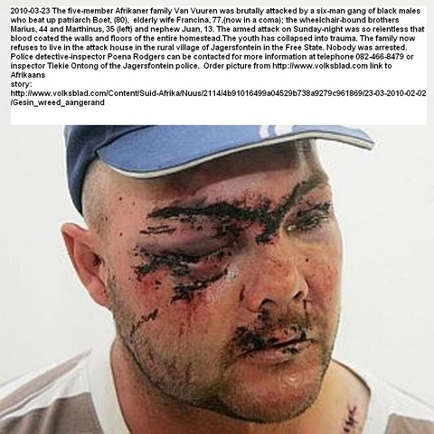 [Van Vuuren Marthinus and family beaten up Jagersfontein six man black gang March 23 2010.jpg]