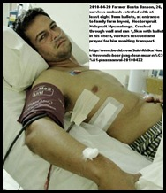 Basson Boeta 26 April202010 farm ambush survivor strafed by 8 bullets PicRobynBaard Beeld