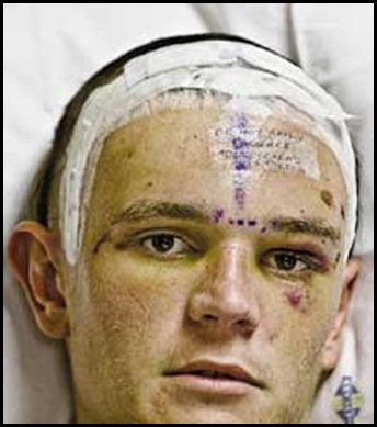 Jackson Craig 17 beaten up by 5 youths Bronhorstspruitdam July42009