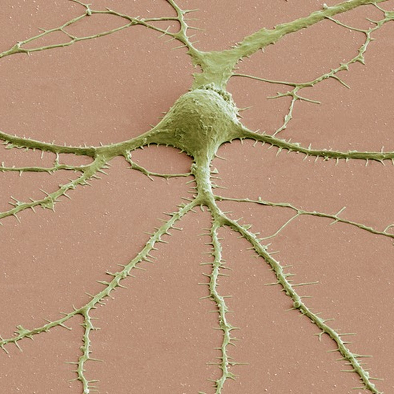 Portraits of the Mind: Brain Cells Under Microscope