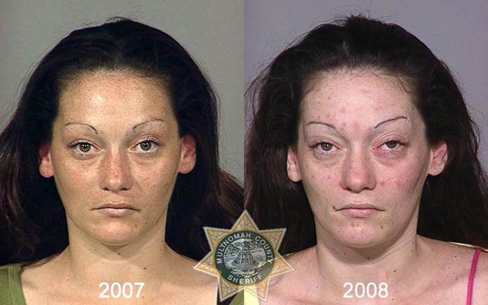 drug-abuse14