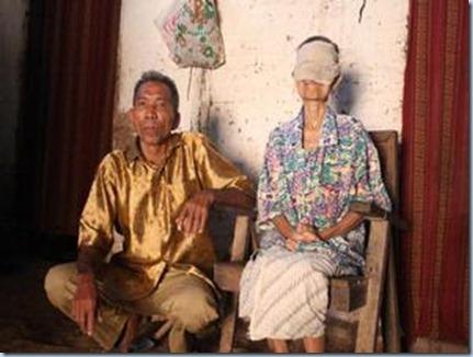 Penyakit Aneh di Indonesia - Video Lucu Foto Unik Gamba