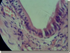 Simple columnar histology_thumb