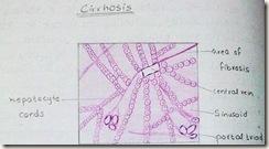 cirrhosis diagram H&E