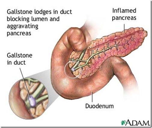 acute pancreatitis case study nursing