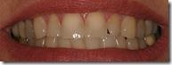 teeth b2