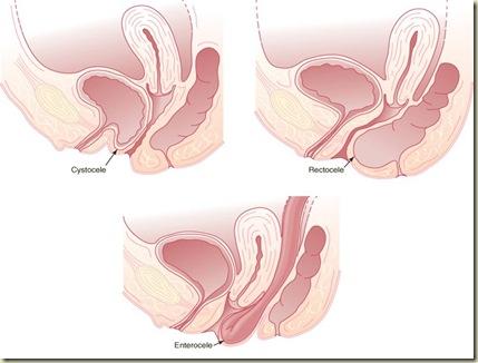 Vaginal Prolaps