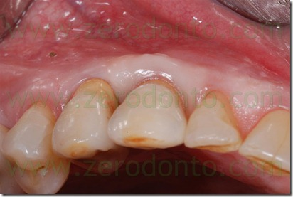 occlusal guidance
