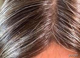 [hairs[51].jpg]